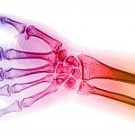 Mechanisms of Nutrient Action in Bone Tissue