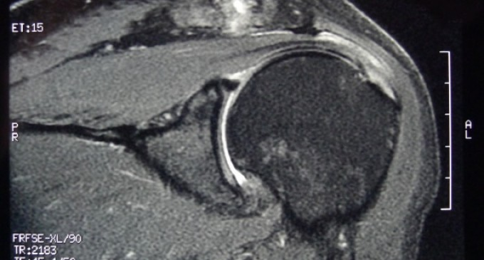 Repair of Full-Thickness Supraspinatus Tear: A Case With MR Study
