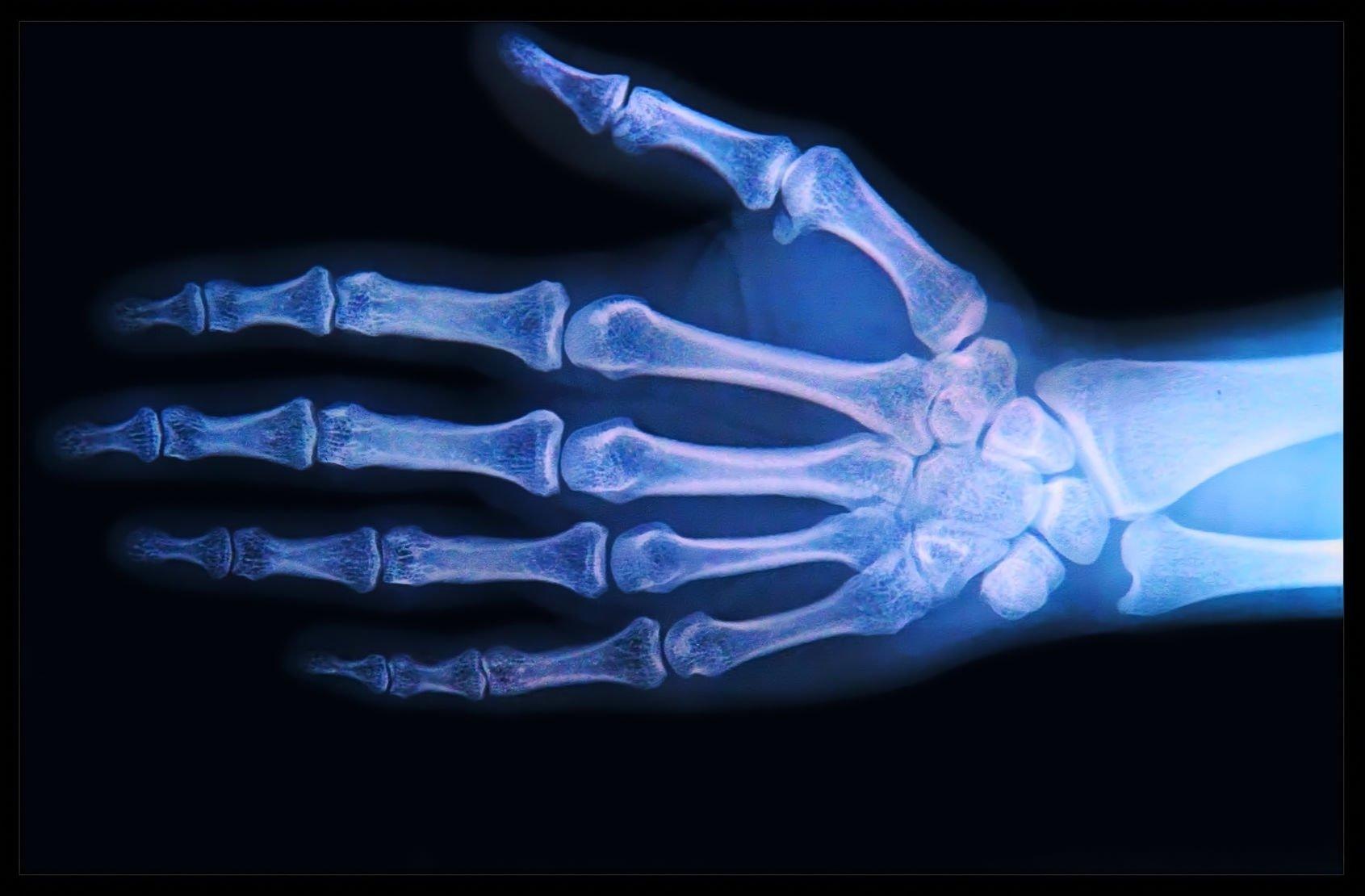 Своими руками рентгеновский аппарат