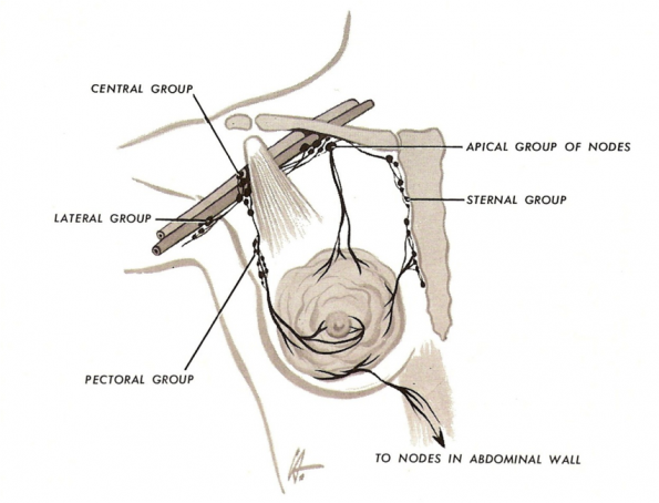 The lymph system draining the breast area is extensive and travels ...