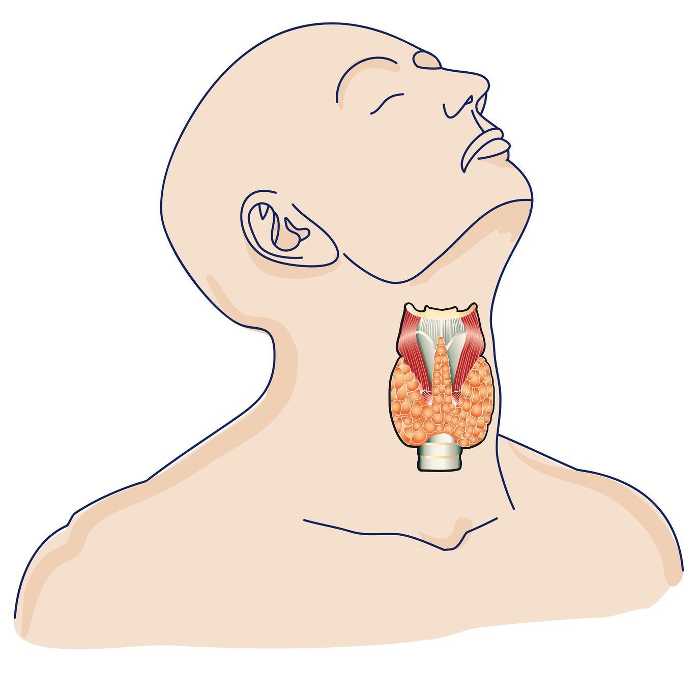woman ølgod knude i brystet mænd