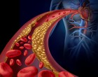 Dietary Management of Dyslipidemia: A Review of Evidence-Based Strategies