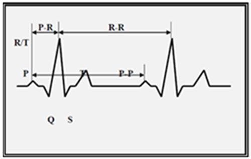 EKG_resized