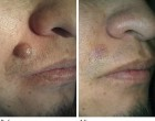 Radiofrequency Mole Removal