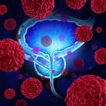 The Revolution in Prostate Cancer Management
