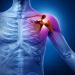 Diagnostic Imaging for Musculoskeletal Concerns