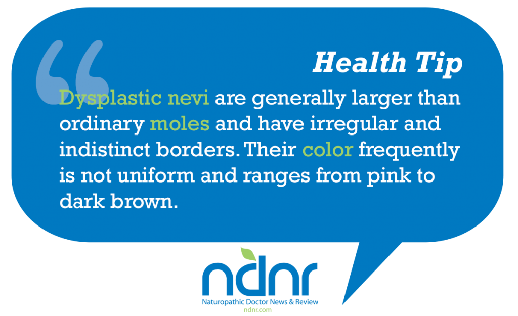 Dysplastic nevi are generally larger than ordinary moles and have irregular and indistinct borders Their color frequently is not uniform and ranges from pink to dark brown