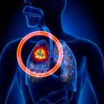 Glucosamine May Lower Lung Cancer