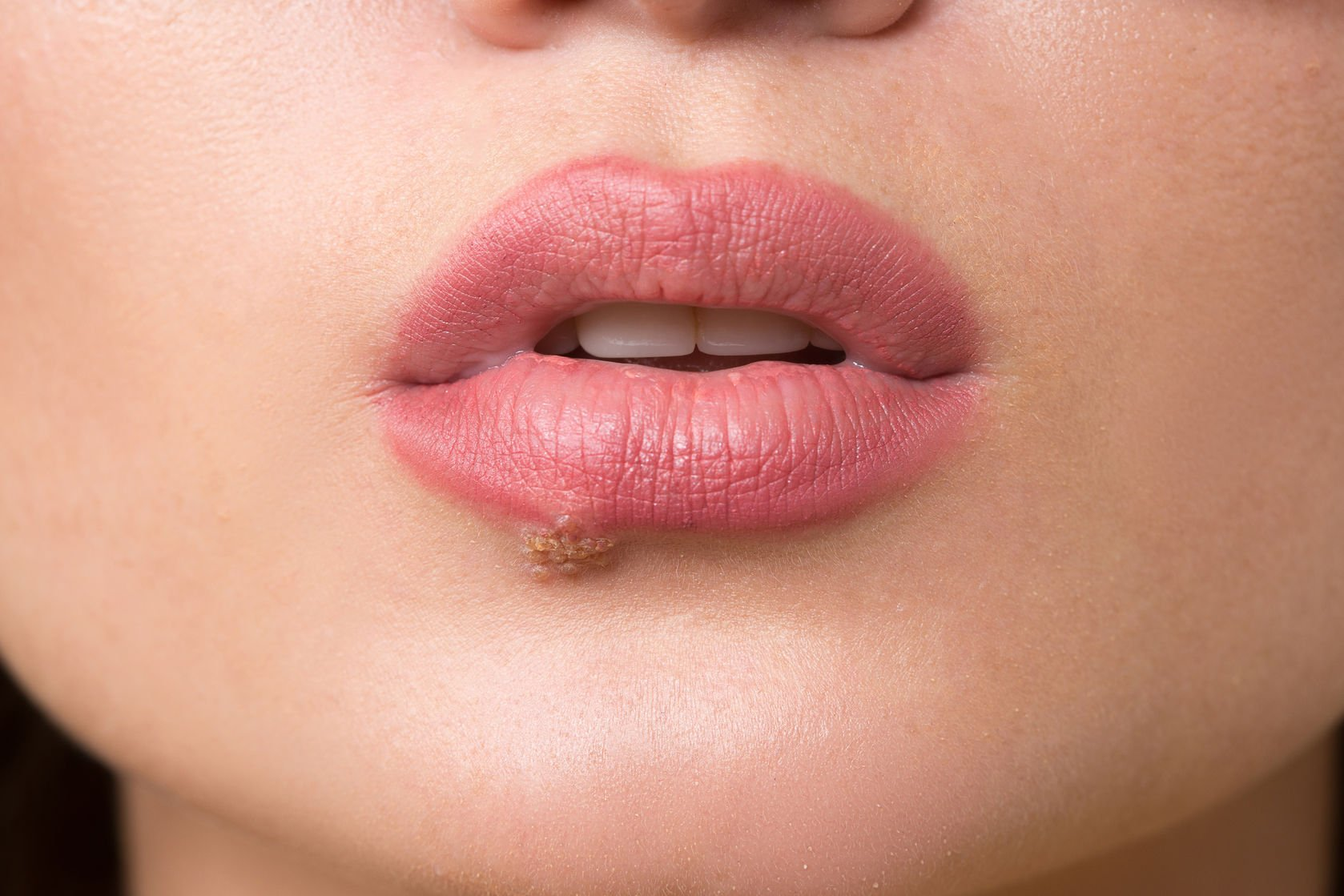 Now That's a Cold Sore! – Naturopathic Doctor News and Review
