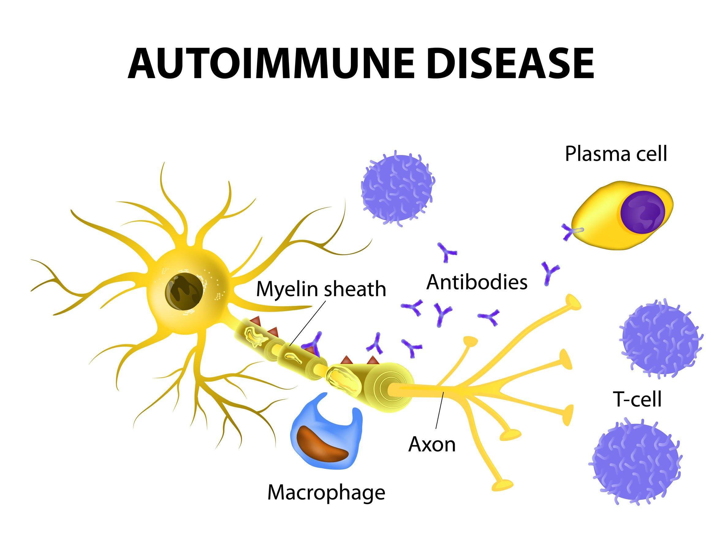 Triggers Of Autoimmune Disease