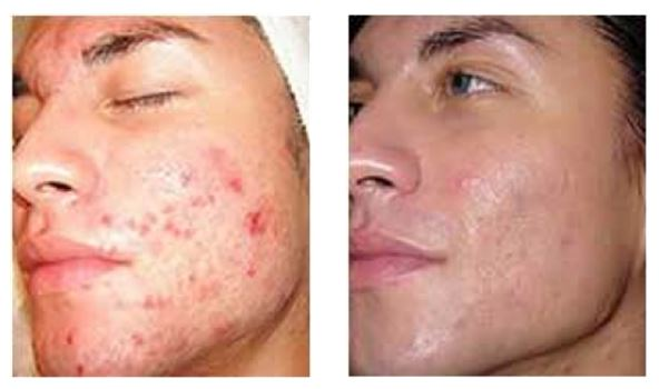 Figure 3. Effect of Multiple Microdermabrasion Sessions (Dermal Infusion) Courtesy of Clarion Medical and Silk Peelâ
