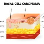 Basal Cell & Squamous Cell CA: Individualized Naturopathic Care