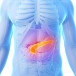 Potential Role for Vitamin A in Pancreatic Cancer