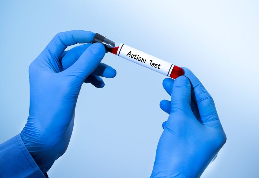 Blood And Urine Tests Developed To >> Are Autism Blood And Urine Tests Coming Soon Naturopathic Doctor