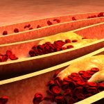 High Fat Diet Affects Immune Cells in Arteries