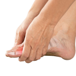 A Comparative Analysis of Gout