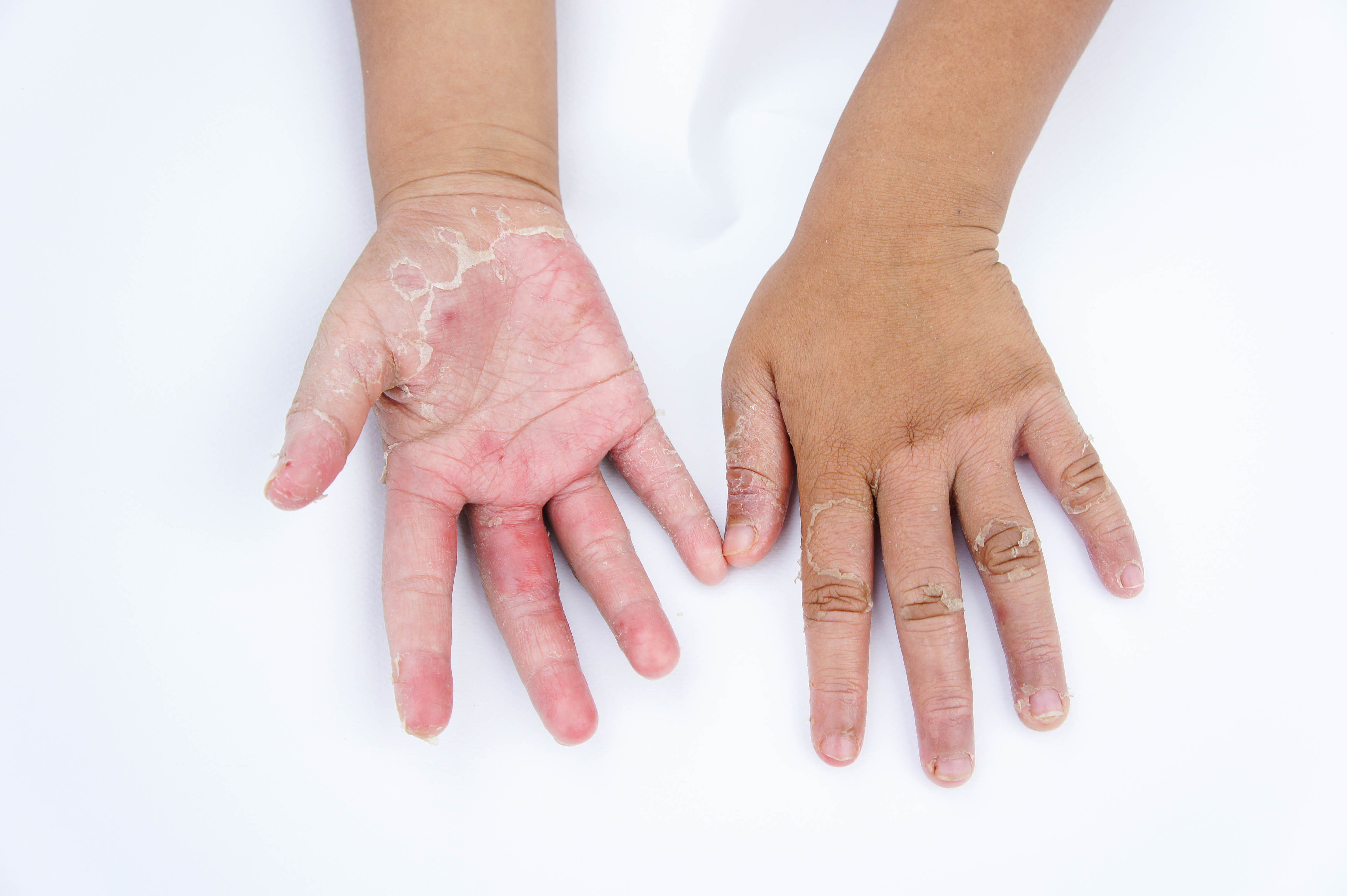 Homeopathic Dermatology – Naturopathic Doctor News and Review