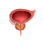 Beyond Saw Palmetto: The Complexity of Benign Prostatic Hyperplasia