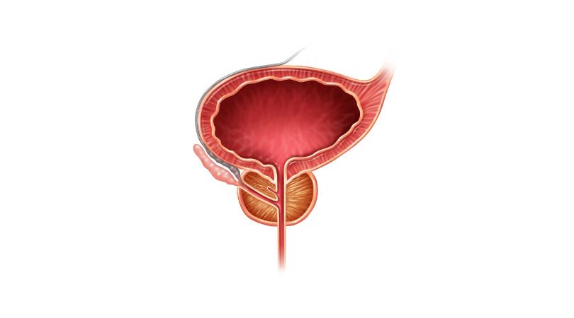 saw palmetto for benign prostatic hyperplasia