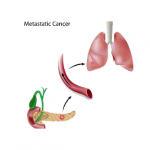 Genetics and Cancer Metastasis Study