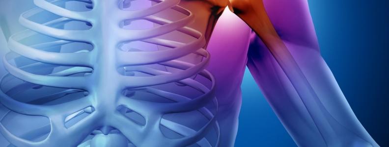 Diagnostic Imaging for Musculoskeletal Concerns