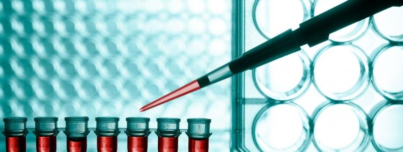 New Autism Blood Biomarker