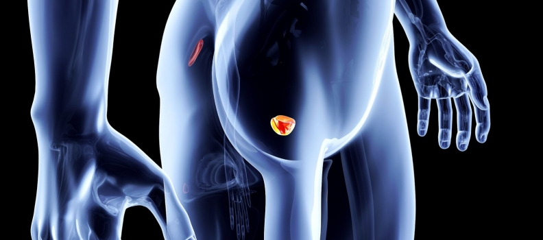 PSA and Beyond: Using Blood Testing to Assess for Prostate Cancer