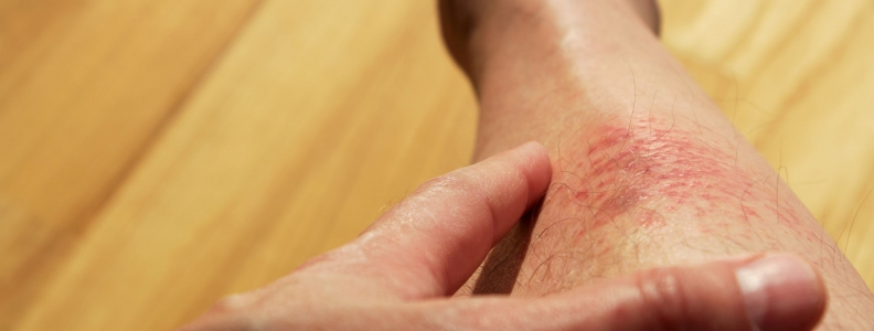 Eczema can have many effects on patients' health