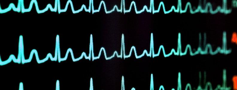 Calming Atrial Fibrillation