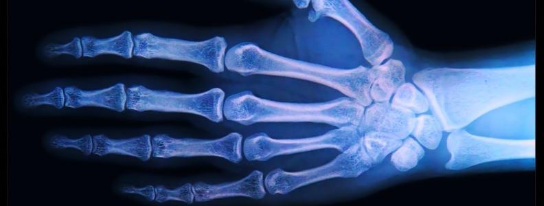 Recalcitrant Bilateral Osteoarthritis