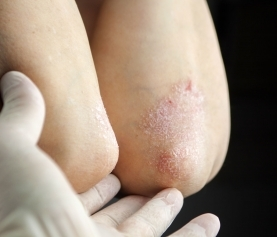 Mixed Inflammatory Skin Conditions: Emerging Dermatological Entities
