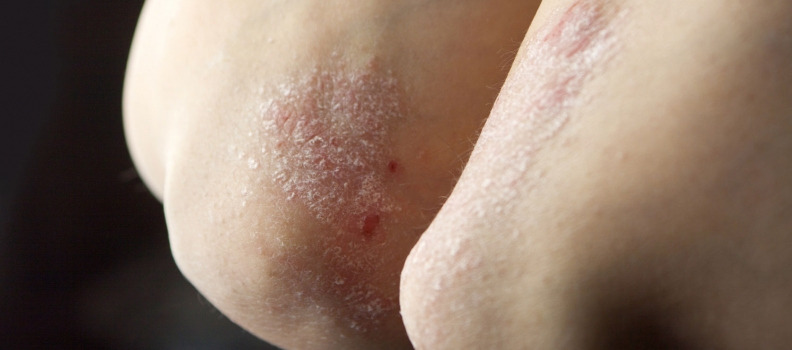Naturopathic Treatment of Eczema