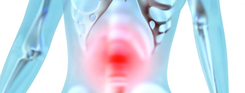 Treatment of UC: A Case Study