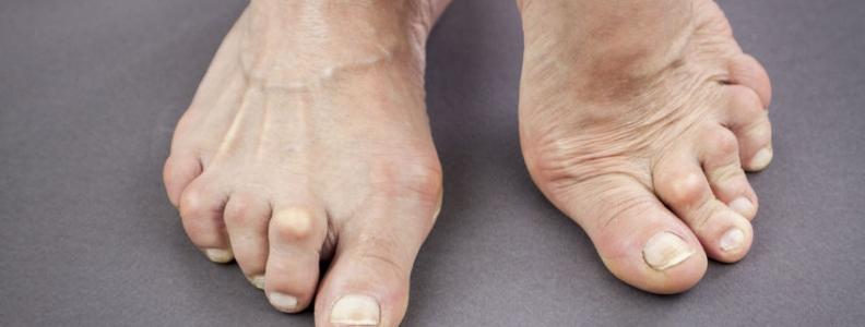 Rheumatoid Arthritis: Integrating Naturopathic Modalities into Treatment