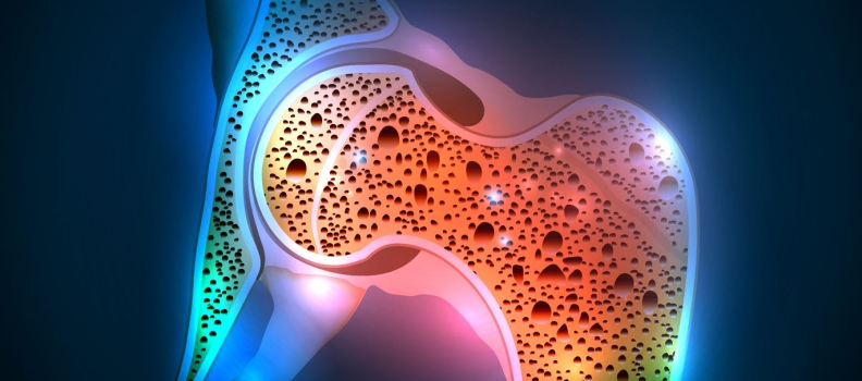 New Risk Factor for Osteoporosis: SSRIs can Impact Bone Health