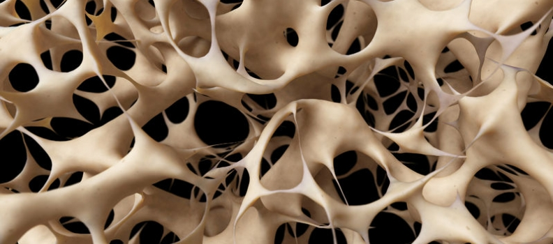 A Case Study in Osteoporosis