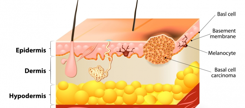 Basal Cell & Squamous Cell CA: Individualized Naturopathic