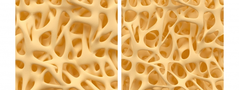 Influence of an Estrogen Receptor on Bone Density