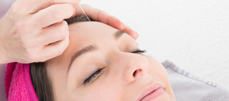 Needling Yet?: Facial Acupuncture for Beauty, Youth, and Vitality