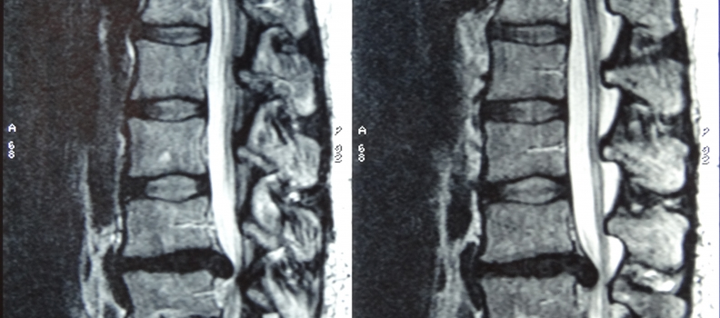 Severe Disc Extrusion and Resolution by Prolotherapy