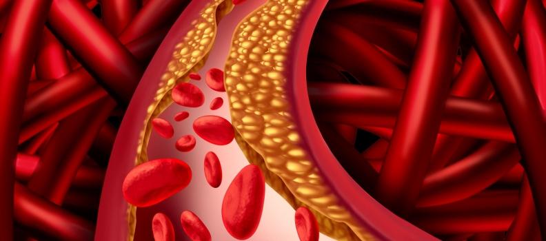 The Microbiome & CVD: Ally or Adversary?