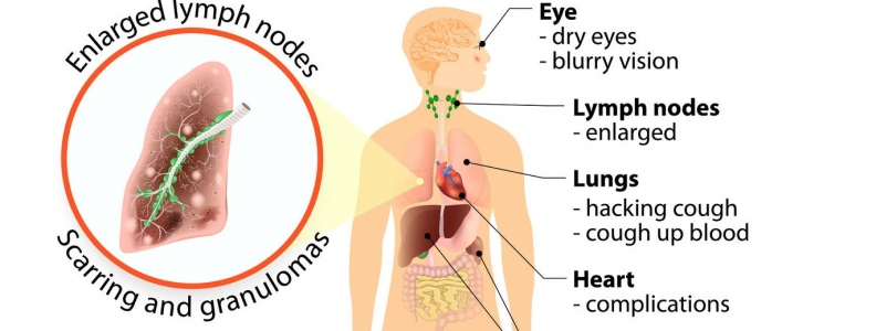 Sarcoidosis and Environmental Toxins