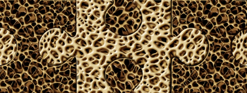 Greater Risk of Osteoporosis with SSRIs