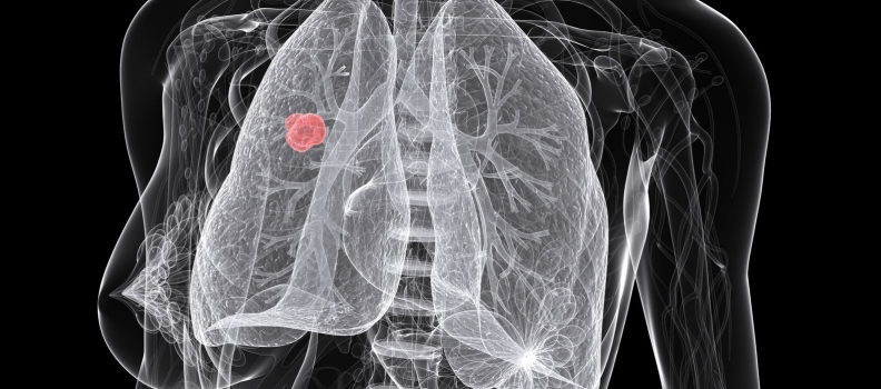 54-Year-Old Woman With Non-Small Cell Lung Cancer