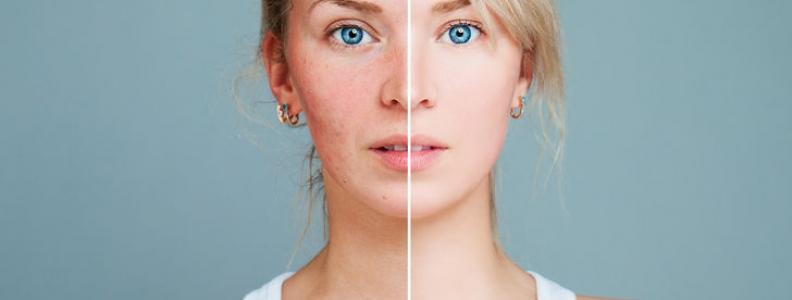 SIBO and Skin Disease Part 1