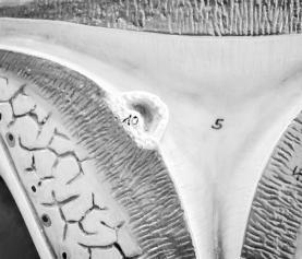 Ovarian Factor Infertility: Workup & Natural Medicine Approach