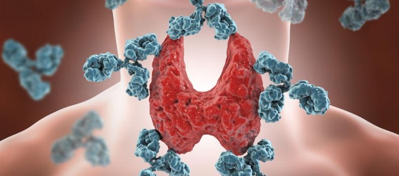 All About Autoimmune Thyroiditis
