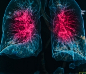 N-acetylcysteine & Autoimmunity