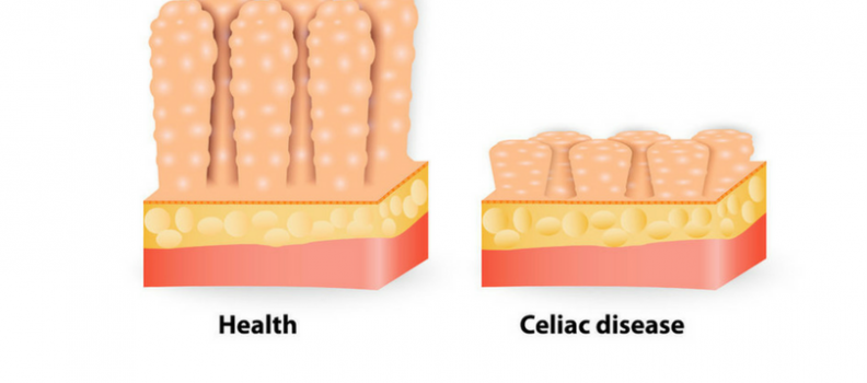 CD vs NCGS – My Patient Tested Negative for Celiac – Now What?