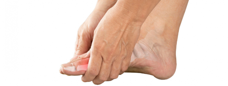A Comparative Analysis of Gout – Naturopathic Doctor News and Review